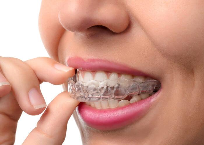 ortodoncia-invisible-metodo